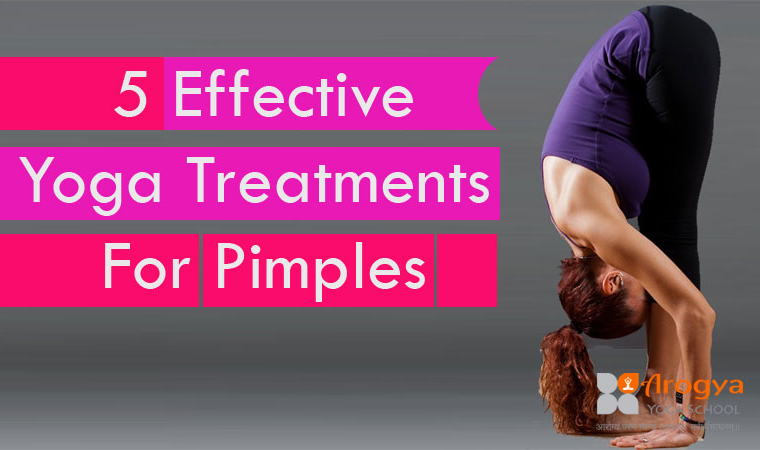 5 Effective Yoga Treatments For Pimples